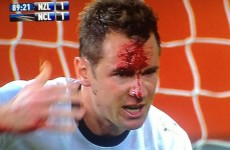VIDEO: New Zealand's Shane Smeltz has his head busted wide open